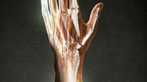 hand_skilet_150816